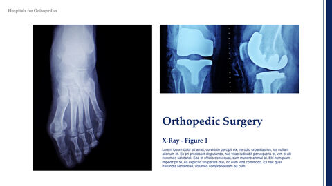 Orthopedics Keynote_05